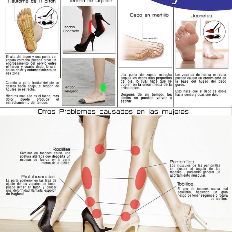 Efectos de los tacones en mujeres ortopedia tome cano - Ortopedia tome cano ...